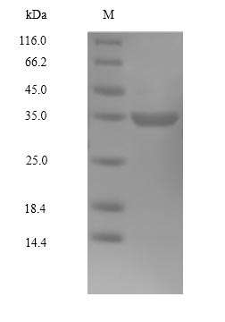 SDS-PAGE separation of QP10035 followed by commassie total protein stain results in a primary band consistent with reported data for CDK4. These data demonstrate Greater than 90% as determined by SDS-PAGE.
