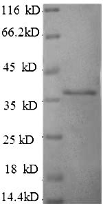 SDS-PAGE separation of QP10083 followed by commassie total protein stain results in a primary band consistent with reported data for HLA-G. These data demonstrate Greater than 90% as determined by SDS-PAGE.