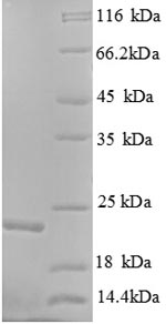 SDS-PAGE separation of QP1194 followed by commassie total protein stain results in a primary band consistent with reported data for K-Ras / K-Ras. These data demonstrate Greater than 90% as determined by SDS-PAGE.
