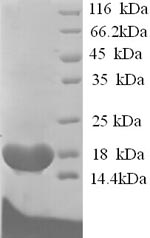 SDS-PAGE separation of QP5708 followed by commassie total protein stain results in a primary band consistent with reported data for BCHE / Butyrylcholinesterase. These data demonstrate Greater than 90% as determined by SDS-PAGE.