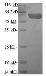 SDS-PAGE separation of QP5827 followed by commassie total protein stain results in a primary band consistent with reported data for Chromogranin A. These data demonstrate Greater than 90% as determined by SDS-PAGE.