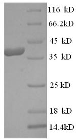 SDS-PAGE separation of QP5856 followed by commassie total protein stain results in a primary band consistent with reported data for Mast cell carboxypeptidase A. These data demonstrate Greater than 90% as determined by SDS-PAGE.