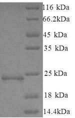SDS-PAGE separation of QP5883 followed by commassie total protein stain results in a primary band consistent with reported data for Cancer / testis antigen 2. These data demonstrate Greater than 90% as determined by SDS-PAGE.