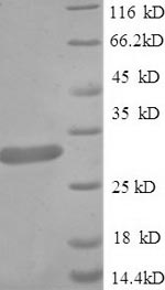 SDS-PAGE separation of QP6068 followed by commassie total protein stain results in a primary band consistent with reported data for Guanidinoacetate N-methyltransferase. These data demonstrate Greater than 90% as determined by SDS-PAGE.