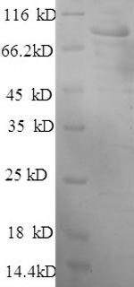 SDS-PAGE separation of QP6163 followed by commassie total protein stain results in a primary band consistent with reported data for Hexokinase-1. These data demonstrate Greater than 90% as determined by SDS-PAGE.