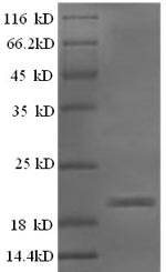 SDS-PAGE separation of QP6206 followed by commassie total protein stain results in a primary band consistent with reported data for IFNG / Interferon Gamma Protein. These data demonstrate Greater than 90% as determined by SDS-PAGE.