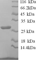 SDS-PAGE separation of QP6210 followed by commassie total protein stain results in a primary band consistent with reported data for IL12B / P40. These data demonstrate Greater than 90% as determined by SDS-PAGE.