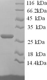 SDS-PAGE separation of QP6247 followed by commassie total protein stain results in a primary band consistent with reported data for JAM-2 / JAM-B. These data demonstrate Greater than 90% as determined by SDS-PAGE.