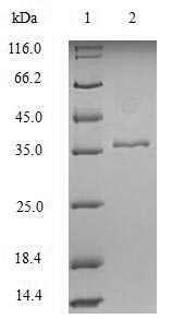 SDS-PAGE separation of QP6279 followed by commassie total protein stain results in a primary band consistent with reported data for Cytokeratin 18. These data demonstrate Greater than 90% as determined by SDS-PAGE.