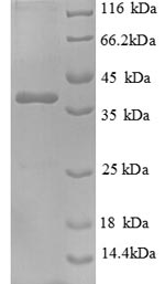 SDS-PAGE separation of QP6428 followed by commassie total protein stain results in a primary band consistent with reported data for Nephrocystin-1. These data demonstrate Greater than 90% as determined by SDS-PAGE.