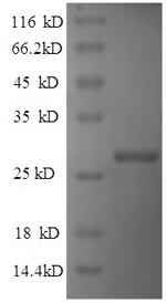 SDS-PAGE separation of QP6597 followed by commassie total protein stain results in a primary band consistent with reported data for Reelin. These data demonstrate Greater than 90% as determined by SDS-PAGE.