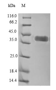 SDS-PAGE separation of QP6615 followed by commassie total protein stain results in a primary band consistent with reported data for ROR1. These data demonstrate Greater than 90% as determined by SDS-PAGE.