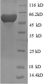 SDS-PAGE separation of QP6630 followed by commassie total protein stain results in a primary band consistent with reported data for RRM2. These data demonstrate Greater than 90% as determined by SDS-PAGE.
