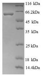 SDS-PAGE separation of QP6633 followed by commassie total protein stain results in a primary band consistent with reported data for Ryanodine receptor 1. These data demonstrate Greater than 90% as determined by SDS-PAGE.
