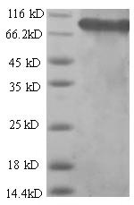 SDS-PAGE separation of QP6659 followed by commassie total protein stain results in a primary band consistent with reported data for SDHA. These data demonstrate Greater than 80% as determined by SDS-PAGE.