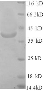 SDS-PAGE separation of QP6694 followed by commassie total protein stain results in a primary band consistent with reported data for Very long-chain acyl-CoA synthetase. These data demonstrate Greater than 90% as determined by SDS-PAGE.