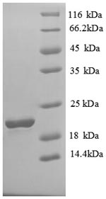 SDS-PAGE separation of QP6695 followed by commassie total protein stain results in a primary band consistent with reported data for Solute carrier family 41 member 2. These data demonstrate Greater than 90% as determined by SDS-PAGE.