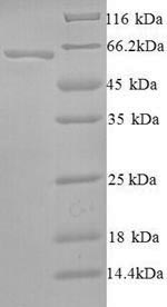 SDS-PAGE separation of QP6698 followed by commassie total protein stain results in a primary band consistent with reported data for SMARCA2. These data demonstrate Greater than 90% as determined by SDS-PAGE.