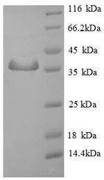 SDS-PAGE separation of QP6700 followed by commassie total protein stain results in a primary band consistent with reported data for SMCP. These data demonstrate Greater than 90% as determined by SDS-PAGE.