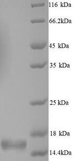 SDS-PAGE separation of QP6704 followed by commassie total protein stain results in a primary band consistent with reported data for SNCA / alpha-Synuclein. These data demonstrate Greater than 90% as determined by SDS-PAGE.