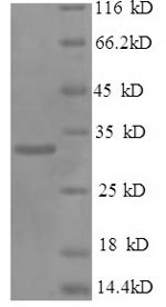 SDS-PAGE separation of QP6722 followed by commassie total protein stain results in a primary band consistent with reported data for Osteopontin / SPP1 / ETA-1. These data demonstrate Greater than 90% as determined by SDS-PAGE.