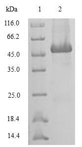 SDS-PAGE separation of QP6727 followed by commassie total protein stain results in a primary band consistent with reported data for SRI / Sorcin. These data demonstrate Greater than 80% as determined by SDS-PAGE.