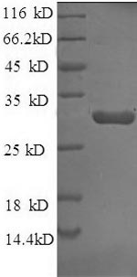 SDS-PAGE separation of QP6775 followed by commassie total protein stain results in a primary band consistent with reported data for Tissue factor pathway inhibitor. These data demonstrate Greater than 90% as determined by SDS-PAGE.