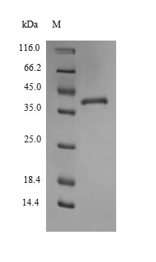 SDS-PAGE separation of QP6785 followed by commassie total protein stain results in a primary band consistent with reported data for Thrombospondin-1. These data demonstrate Greater than 90% as determined by SDS-PAGE.