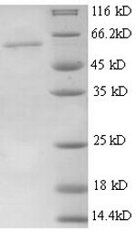 SDS-PAGE separation of QP6787 followed by commassie total protein stain results in a primary band consistent with reported data for Thrombospondin-3. These data demonstrate Greater than 90% as determined by SDS-PAGE.