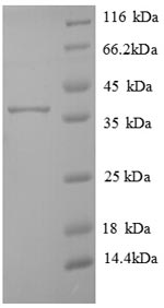 SDS-PAGE separation of QP6804 followed by commassie total protein stain results in a primary band consistent with reported data for Transmembrane protein 14B. These data demonstrate Greater than 90% as determined by SDS-PAGE.