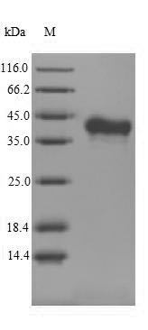 SDS-PAGE separation of QP6818 followed by commassie total protein stain results in a primary band consistent with reported data for RANKL / OPGL / TNFSF11 / CD254. These data demonstrate Greater than 90% as determined by SDS-PAGE.