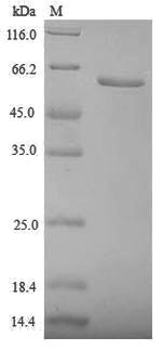 SDS-PAGE separation of QP6911 followed by commassie total protein stain results in a primary band consistent with reported data for Zona pellucida sperm-binding protein 3. These data demonstrate Greater than 90% as determined by SDS-PAGE.