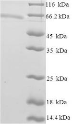 SDS-PAGE separation of QP6913 followed by commassie total protein stain results in a primary band consistent with reported data for ZSCAN20. These data demonstrate Greater than 90% as determined by SDS-PAGE.