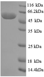 SDS-PAGE separation of QP6914 followed by commassie total protein stain results in a primary band consistent with reported data for Creatinine amidohydrolase. These data demonstrate Greater than 90% as determined by SDS-PAGE.