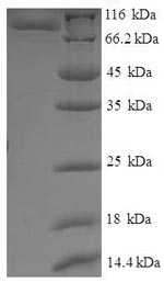SDS-PAGE separation of QP7172 followed by commassie total protein stain results in a primary band consistent with reported data for IFM1