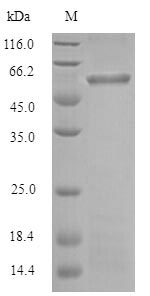 SDS-PAGE separation of QP7192 followed by commassie total protein stain results in a primary band consistent with reported data for Gingipain R1. These data demonstrate Greater than 80% as determined by SDS-PAGE.