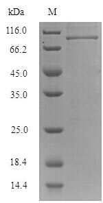 SDS-PAGE separation of QP7285 followed by commassie total protein stain results in a primary band consistent with reported data for Influenza B (strain B / Singapore / 222 / 1979) Nucleoprotein. These data demonstrate Greater than 90% as determined by SDS-PAGE.