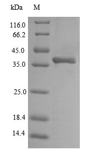 SDS-PAGE separation of QP7322 followed by commassie total protein stain results in a primary band consistent with reported data for Outer membrane protein A. These data demonstrate Greater than 90% as determined by SDS-PAGE.