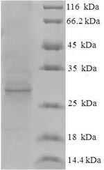 SDS-PAGE separation of QP7492 followed by commassie total protein stain results in a primary band consistent with reported data for Protein ORF3. These data demonstrate Greater than 90% as determined by SDS-PAGE.