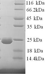 SDS-PAGE separation of QP7837 followed by commassie total protein stain results in a primary band consistent with reported data for Dystonin. These data demonstrate Greater than 90% as determined by SDS-PAGE.