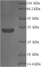 SDS-PAGE separation of QP8080 followed by commassie total protein stain results in a primary band consistent with reported data for IL1F5 / IL36RN. These data demonstrate Greater than 90% as determined by SDS-PAGE.