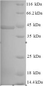 SDS-PAGE separation of QP8146 followed by commassie total protein stain results in a primary band consistent with reported data for Lysyl endopeptidase. These data demonstrate Greater than 80% as determined by SDS-PAGE.
