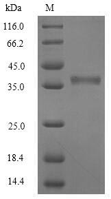 SDS-PAGE separation of QP8301 followed by commassie total protein stain results in a primary band consistent with reported data for Oncostatin M / OSM. These data demonstrate Greater than 90% as determined by SDS-PAGE.
