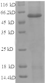 SDS-PAGE separation of QP8512 followed by commassie total protein stain results in a primary band consistent with reported data for Angiopoietin-2 / ANG2. These data demonstrate Greater than 90% as determined by SDS-PAGE.