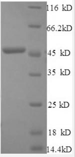 SDS-PAGE separation of QP8547 followed by commassie total protein stain results in a primary band consistent with reported data for IFNB1 / IFN-beta / Interferon beta. These data demonstrate Greater than 90% as determined by SDS-PAGE.