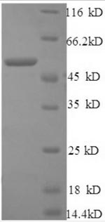 SDS-PAGE separation of QP8562 followed by commassie total protein stain results in a primary band consistent with reported data for Cathepsin B / CTSB. These data demonstrate Greater than 90% as determined by SDS-PAGE.