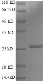 SDS-PAGE separation of QP8572 followed by commassie total protein stain results in a primary band consistent with reported data for Metalloproteinase inhibitor 4. These data demonstrate Greater than 90% as determined by SDS-PAGE.