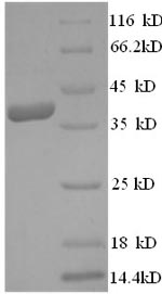 SDS-PAGE separation of QP8578 followed by commassie total protein stain results in a primary band consistent with reported data for Vascular endothelial growth factor D. These data demonstrate Greater than 90% as determined by SDS-PAGE.