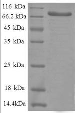 SDS-PAGE separation of QP8584 followed by commassie total protein stain results in a primary band consistent with reported data for HSPD1 / HSP60. These data demonstrate Greater than 90% as determined by SDS-PAGE.
