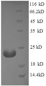 SDS-PAGE separation of QP8593 followed by commassie total protein stain results in a primary band consistent with reported data for Adiponectin. These data demonstrate Greater than 90% as determined by SDS-PAGE.